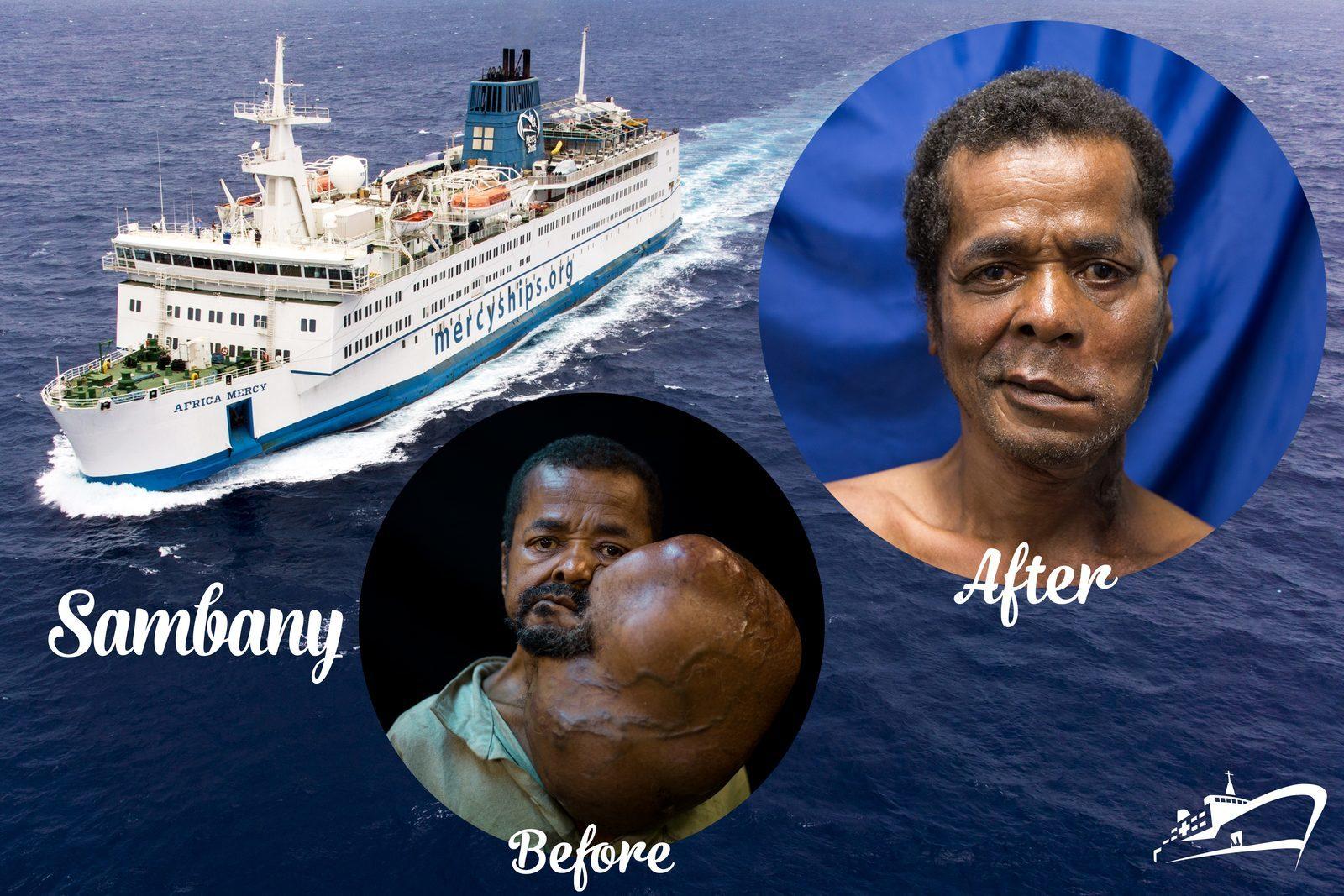 Mercy Ships Sambany